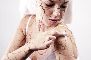 Признаки профилактика и уход за сухим типом кожи лица