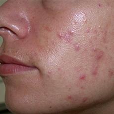 Угревая сыпь на лице, причины и лечение