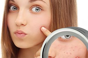 Угревая сыпь на лице лечение