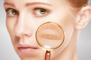 Причины, профилактика и лечение нарушения пигментации кожи