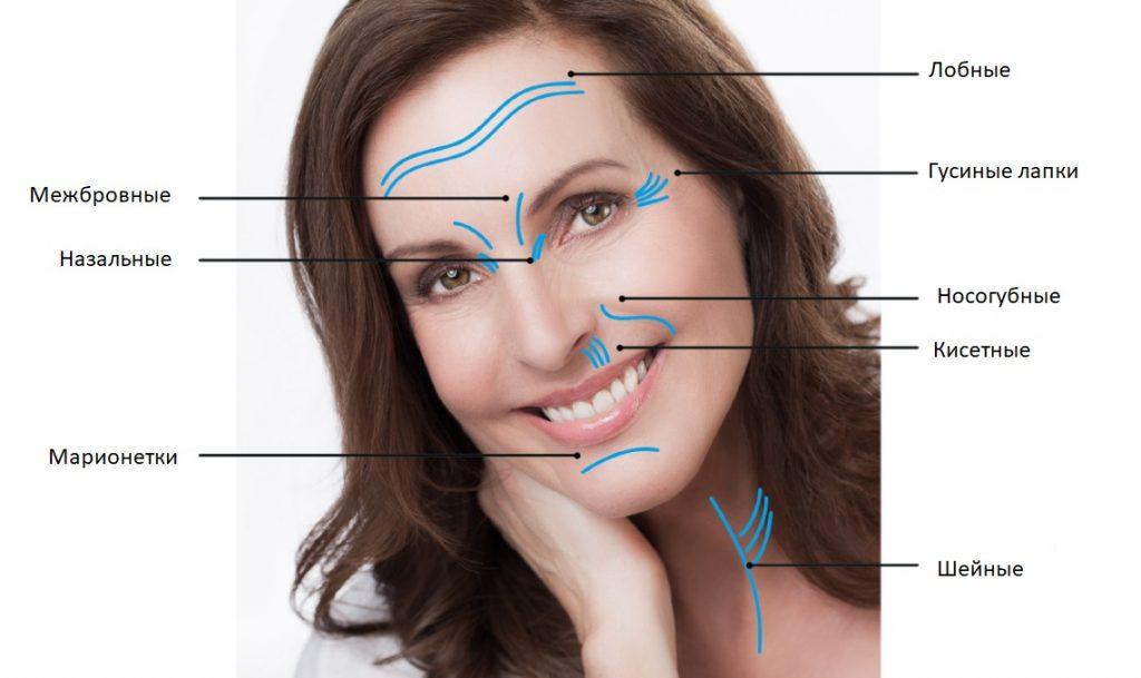 Почему появляются морщины на лице