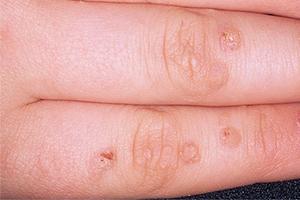 Как избавиться от бородавок — способы лечения