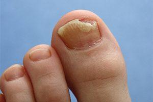 Лечение грибка стопы и ногтей в домашних условиях